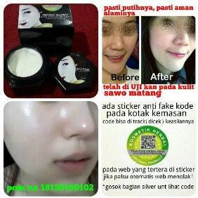 Foto: Magic Glossy Atasi Kulit Susah Putih,