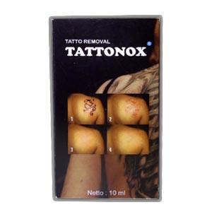 Foto: Agen Tattonox Penghilang Tattoo