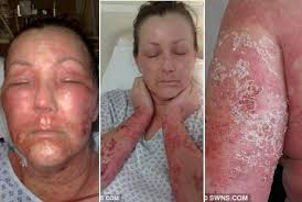 Foto: Obat Kulit Di Bagian Dagu Merah Kering Mengelupas