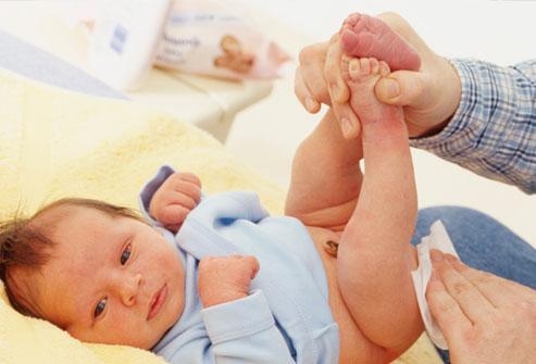 Foto: Cara Menyembuhkan Mencret Pada Bayi