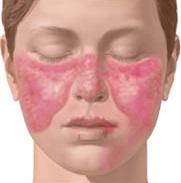 Foto: Obat Lupus Eritematosus Sistemik