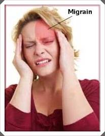 Foto: Obat Migrain Karena Tekanan Darah Rendah
