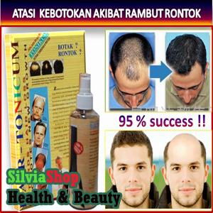Foto: Hair Tonic Atasi Rambut  Botak Dan Rontok