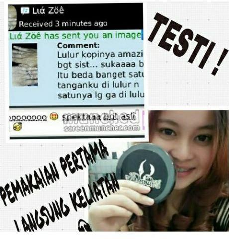 Foto: Cream Pemutih Wajah Dan Kulit Auraglow Aman Alami BPOM