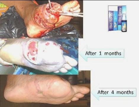 Foto: Obat Ampuh Luka Diabetes Pasti Sembuh